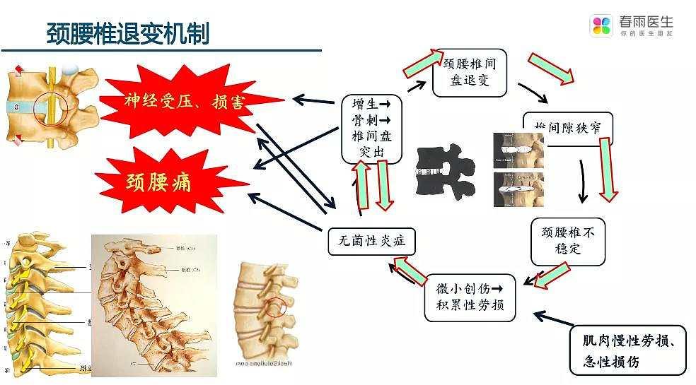 专家讲堂|如何缓解颈腰椎疼痛?