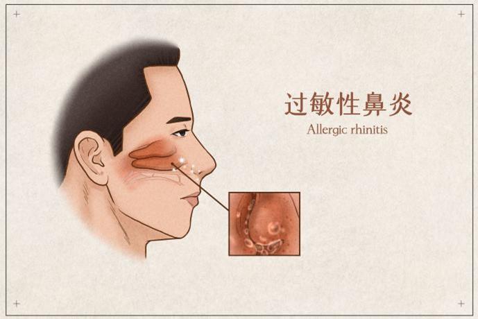 科学了解鼻炎!千万别把过敏性鼻炎当感冒!