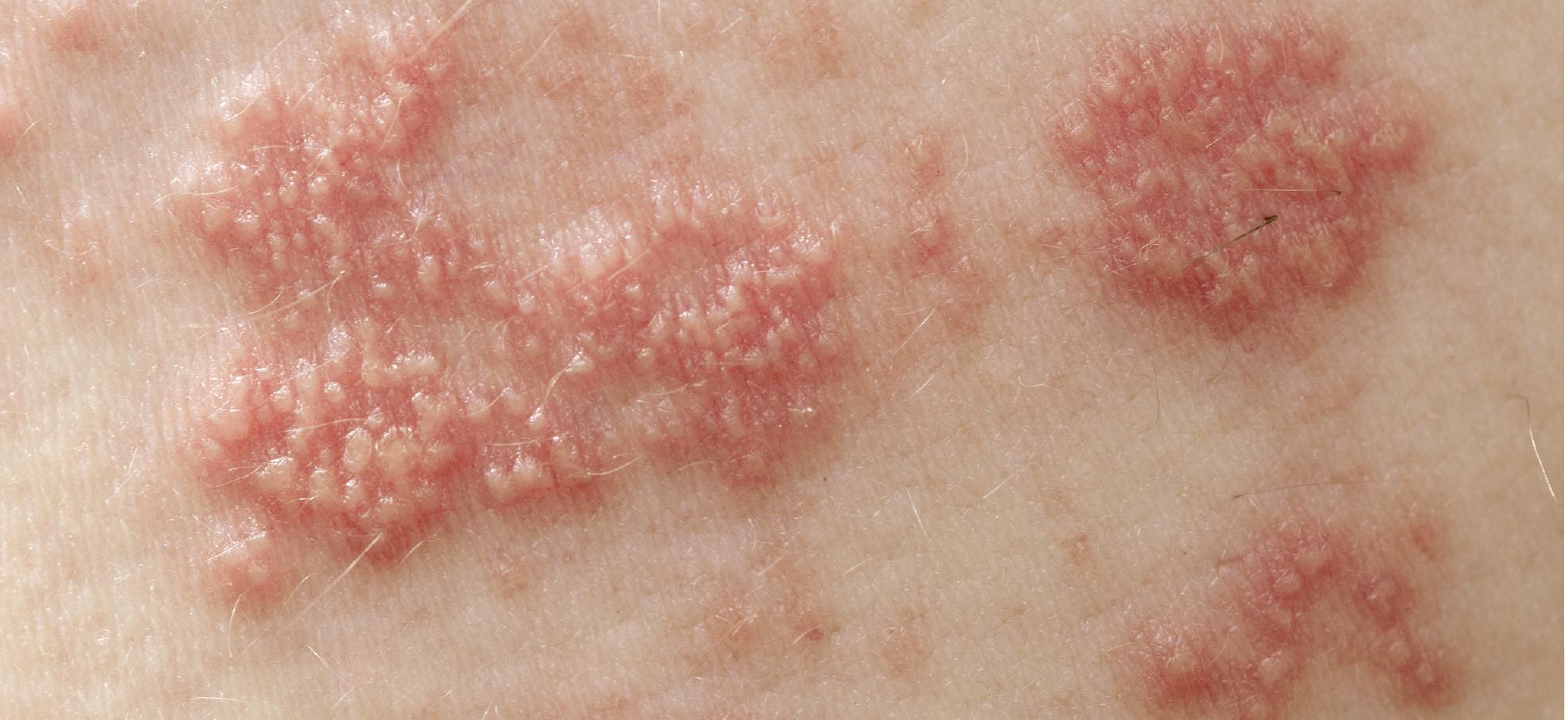 胸痛让人疼痛难耐,竟是带状疱疹在作怪