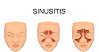 你被鼻窦炎困扰过吗?快来看看吧!