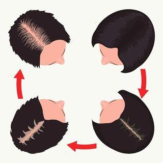 换发缝能防脱发?你可能会秃得更均匀……