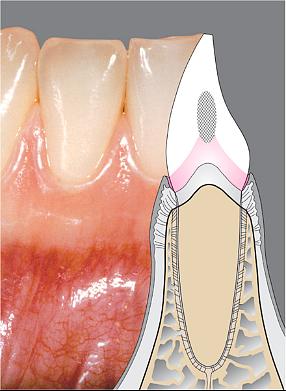 刷牙出血牙龈肿痛,为什么比牙疼更危险?
