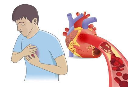 """单身新借口?另一半有心脏病,自己大概率""""连坐"""""""