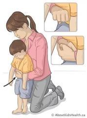 家长注意!当孩子发生这种意外时,先送医反而会丧命!