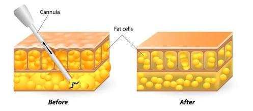 网红抽脂感染去世,人可以追求暴瘦但不该折寿