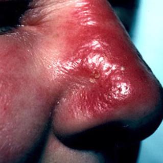 那些年淋过大雨的依萍若曦二月红江直树……最容易得哪几种感染性疾病?
