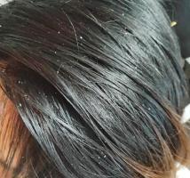 头发油腻,头屑反复,女性朋友更要留意脂溢性皮炎!