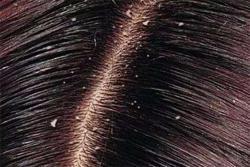 指甲一抠都是白色的头屑,用这样的洗发水能解决
