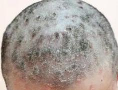 正确使用酮康唑,应对脂溢性皮炎引起的头屑、头油反复发作!