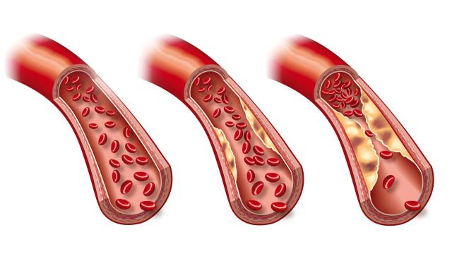 这项指标40%的人有异常,不早干预可能导致心血管疾病