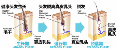 拒绝头屑和头痒,应该如何科学洗头?