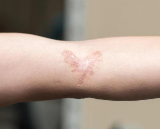 好消息好消息!科学家可能找到预防疤痕的方法啦