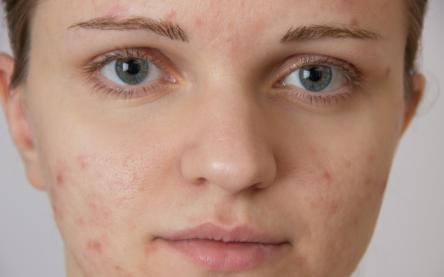 如何养出女明星那样细腻的好皮肤?最关键是做对这7点,全教给你